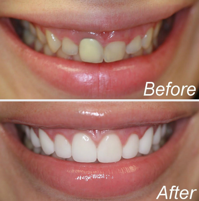 NYC Celebrity Dentist, Mojgan Fajiram DDS, Announces ...