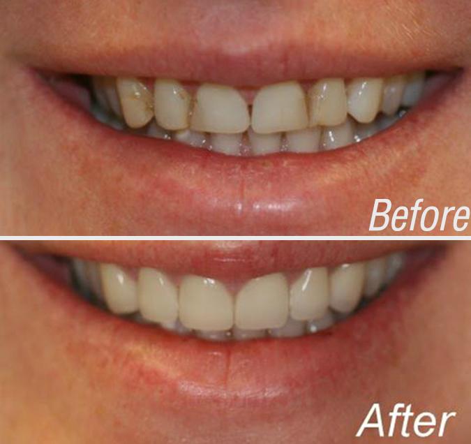 Cosmetic Dentist NYC   Upper East Side, Manhattan   Dr ...