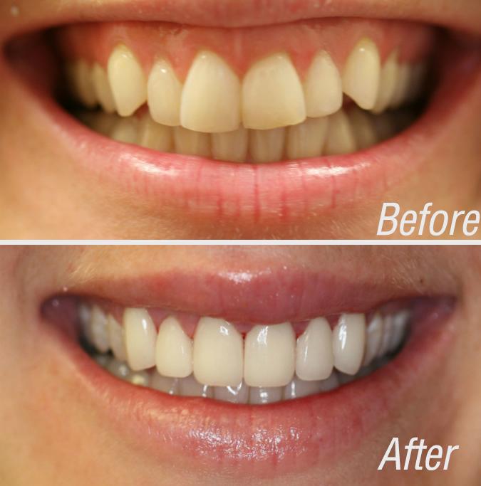 Cosmetic Dentist NYC   Dr. Victoria Veytsman