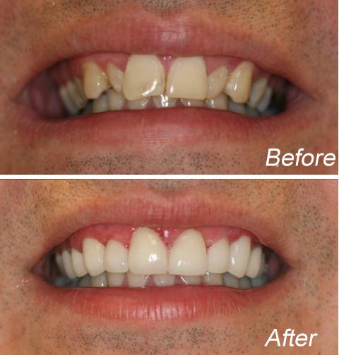 NYC Smile Design - Manhattan Cosmetic Dentist