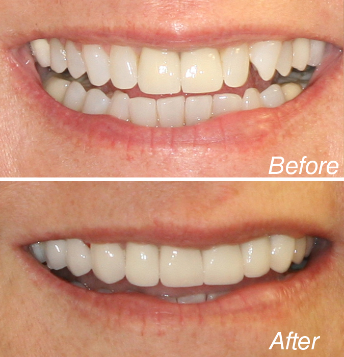 Cosmetic Dentist Manhattan New York City NYC Michael ...