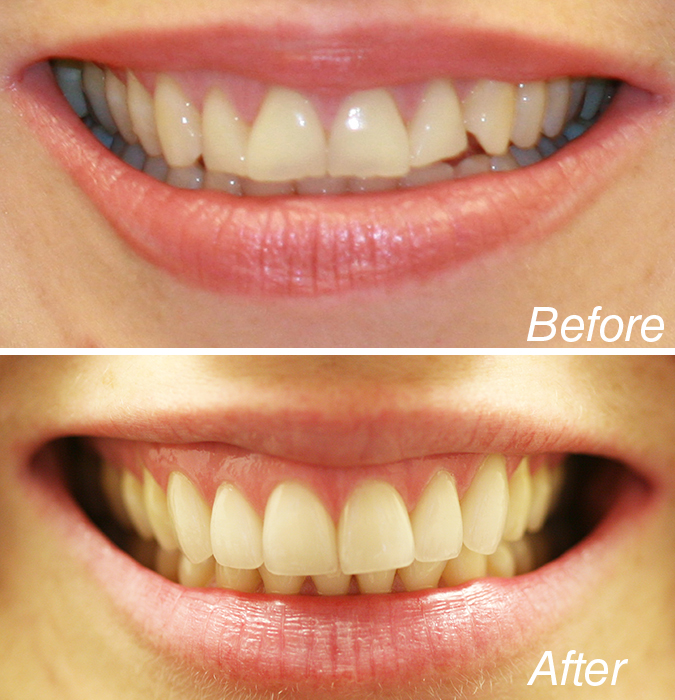 Best NYC Cosmetic Dentistry - NYC Dentist   The Center for ...