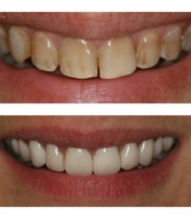 costmetic-dentistry-before-after-photo-2