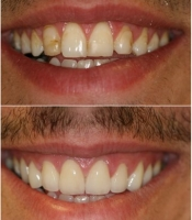 costmetic-dentistry-before-after-photo-3