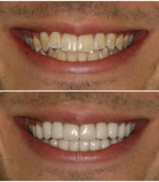 costmetic-dentistry-before-after-photo-4