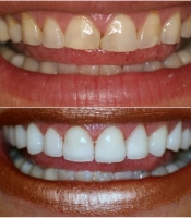 costmetic-dentistry-before-after-photo-5