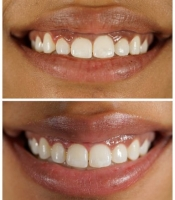 costmetic-dentistry-before-after-photo-6