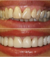costmetic-dentistry-before-after-photo-8