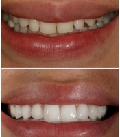 costmetic-dentistry-before-after-photo-9