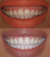 costmetic-dentistry-before-after-photo-1