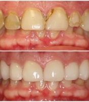 costmetic-dentistry-before-after-photo-10