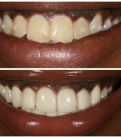 costmetic-dentistry-before-after-photo-7